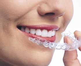 Ortodoncia invisible todo lo que necesitas saber - Como alinear los dientes en casa sin brackets ...