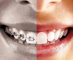 arreglar dientes brackets invisibles