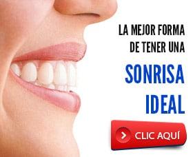 brackets invisibles arreglar dientes alinear