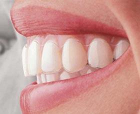 brackets invisibles invisalign dientes salud