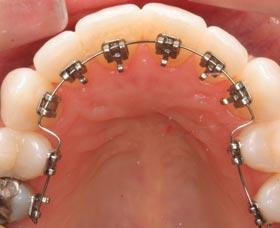 ortodoncia invisible Brackets o frenillos internos