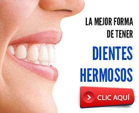 ortodoncia invisible precio mejor forma de arreglar dientes