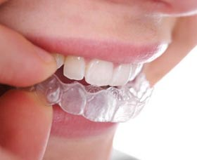 Ortodoncia invisalign precio