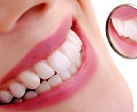 El precio de Invisalign Express es generalmente menor al precio regular de la ortodoncia invisible