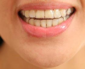 que es invisalign cuanto cuesta ortodoncia invisible