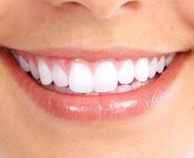 sonrisa perfecta arreglar dientes torcidos ortodoncia invisible