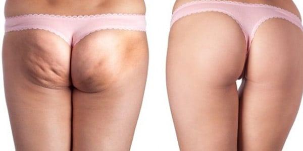 Ejercicios para acabar con la celulitis de piernas y gluteos