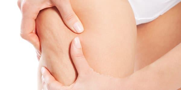 Ejercicios para la celulitis cuanto tiempo tardara eliminar la celulitis