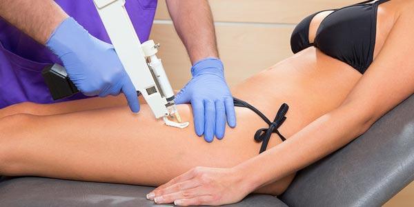Eliminar la celulitis de celulitis de piernas y gluteos tratamiento de mesoterapia