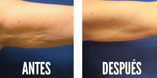 Programa de ejercicios para eliminar la celulitis en los brazos