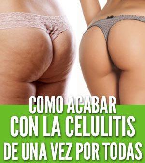 Cómo acabar con la celulitis