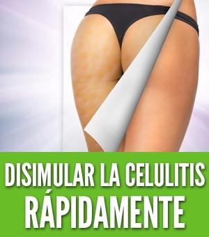 cómo disimular la celulitis rápidamente