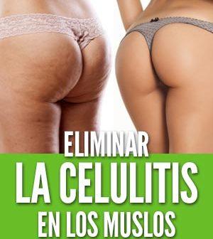 Eliminar la celulitis en los muslos