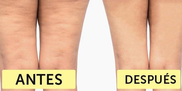 Resultado de imagen para Celulitis antes y después del tratamiento