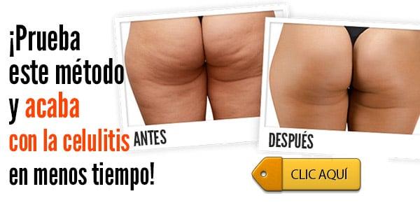 Aceite De Coco Y Cafe Celulitis